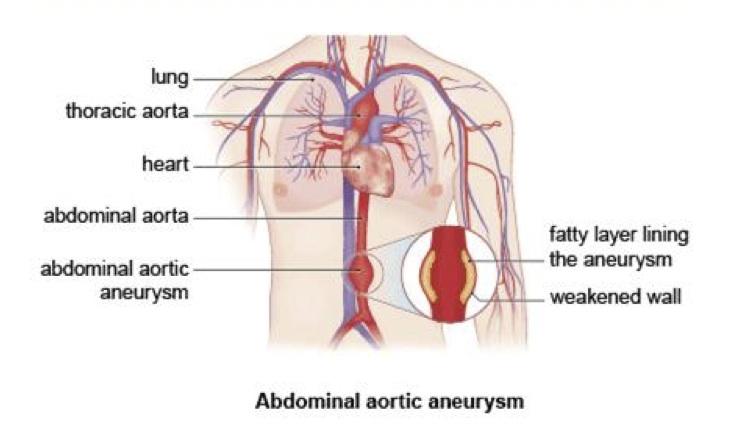 Abdominal aortic aneurysm - Medicare