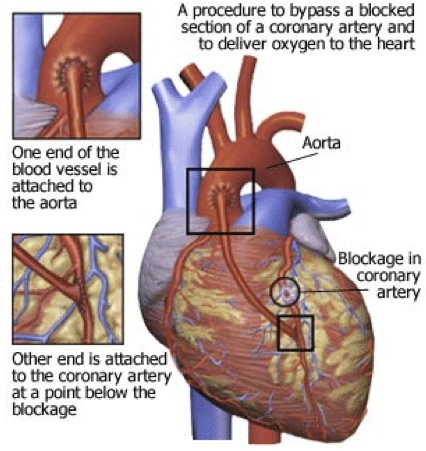Cabg Surgery Heart Ukraine Price Cabg Bypass Heart