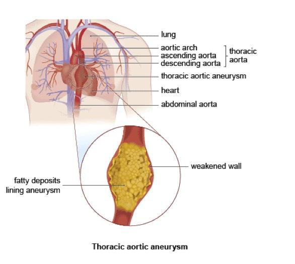 Thoracic Aortic Aneurysm Medicare